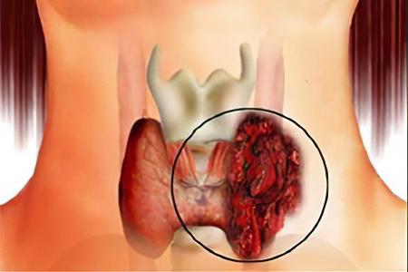Рак щитовидной железы - Лечение радиоактивным йодом