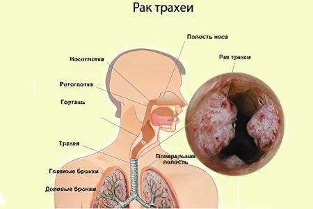 Симптомы рака трахеи у женщин
