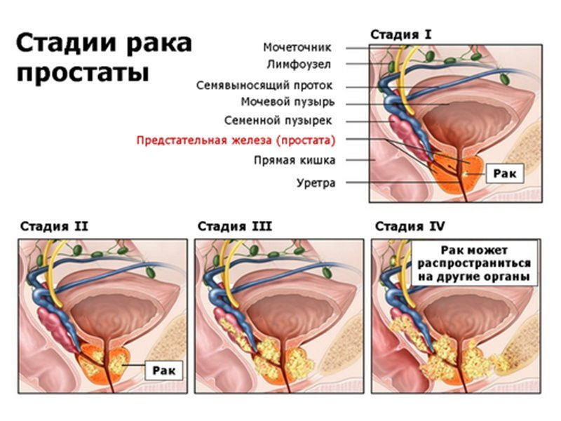 Воспаление предстательной железы из за чего