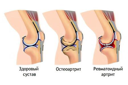От чего болит сустав в колене артрит коленного сустава народные средства ванна