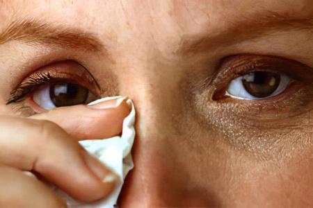 Симптомы глазного токсокароза