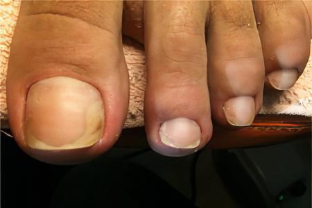 фото микоз ногтей