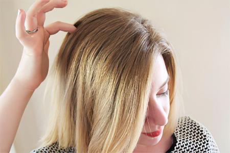 Жировик на голове – причины, симптомы и лечение