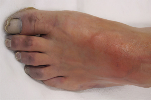 Влажная гангрена – причины, симптомы и лечение