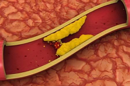 Что такое склероз аорты и его лечение