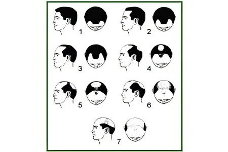 какие есть ампулы для роста волос