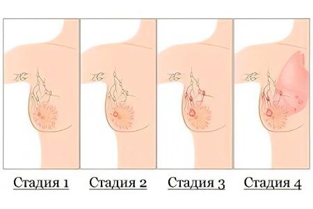 Размер ореолов сосков у женщин относительно секса