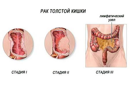 Ставить ли прививку от гепатита а ребенку