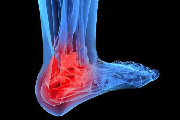 повышен соэ при ревматоидном артрите