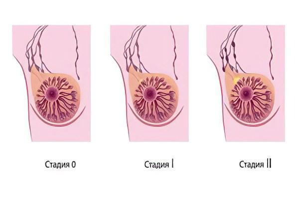 Секс как метод профилактики рака молочной железы фото 747-532