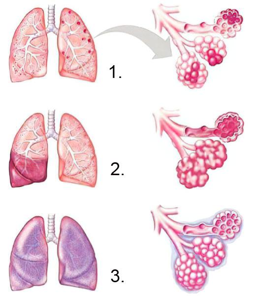 Стадии пневмонии