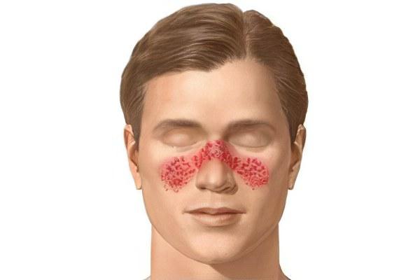Симптомы стафилококка на лице