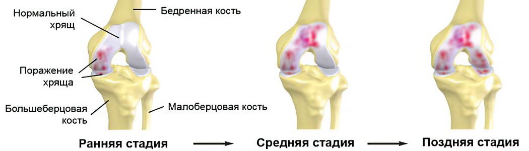 Артроз коленного сустава – причины, симптомы, 1, 2, 3 степень и ...