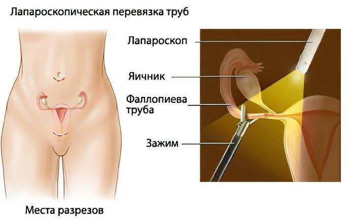 sterilisation-3.jpg