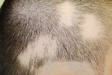 Стригущий лишай на голове у ребенка лечение фото