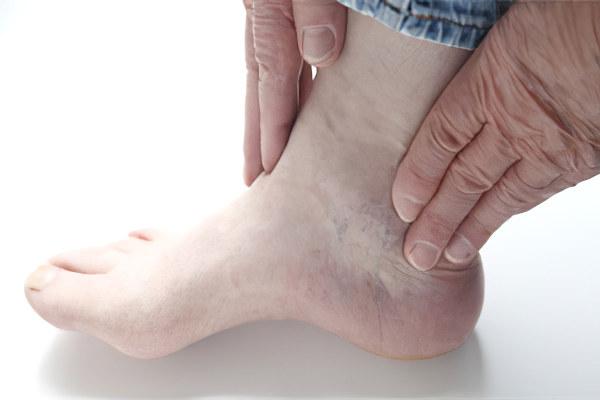 Воспаление голеностопного сустава ноги фото лечение острая боль в коленном суставе при ходьбе