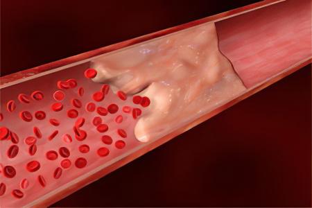 Тромбоз верхней брыжеечной артерии