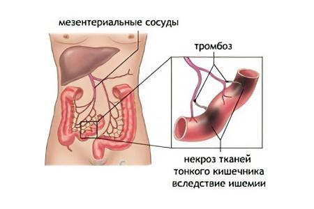 Тромбоз мезентериальных сосудов лечение