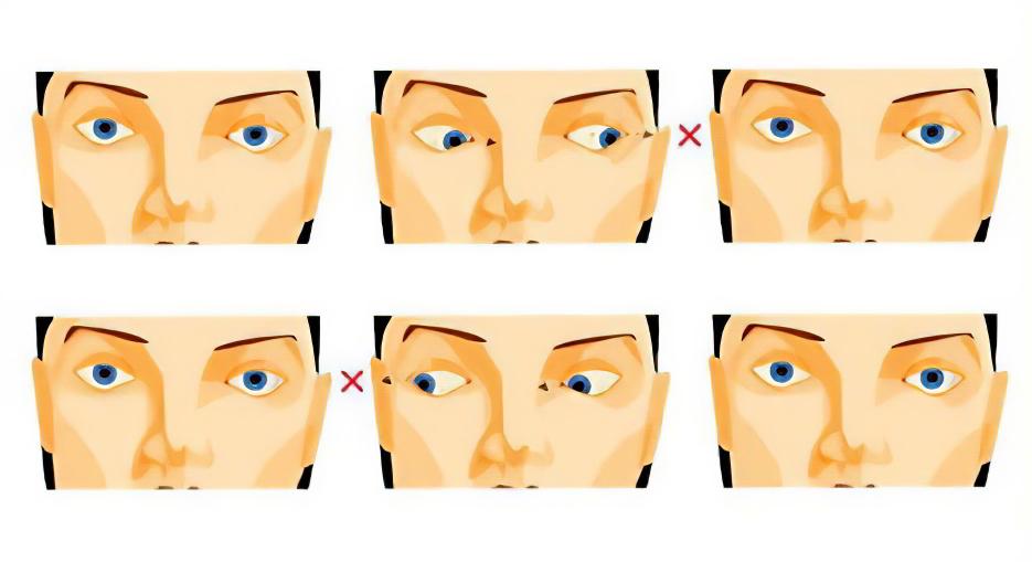 Лечение близорукости Упражнения при близорукости
