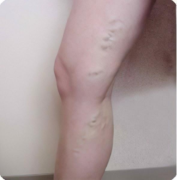 Что такое варикоз вен на ногах