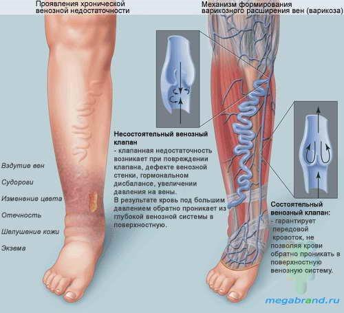 Эффективное лечение варикоза. wpid sGUUw F3JRY Эффективное лечение варикоза.