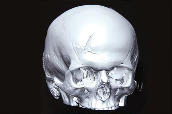 Вдавленный перелом черепа