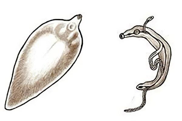 виды паразитов в организме