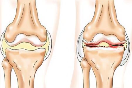 Повреждения коленного сустава мениска симптомы артроза голеностопного сустава