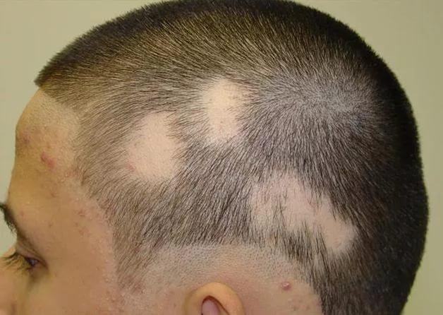 Выпадение волос лечение народные методы лечения