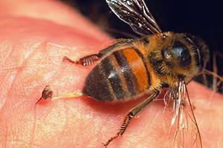 Укус пчелы или осы опухоль и покраснение что делать фото