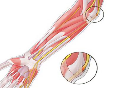 Защемление нерва в локтевом суставе упражнения гематома правого коленного сустава