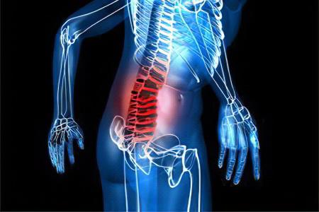 Защемление нерва в пояснице - причины, симптомы и лечение ...