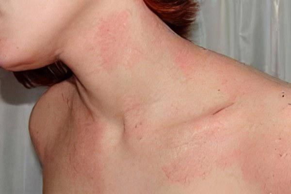красные пятна на разных участках тела