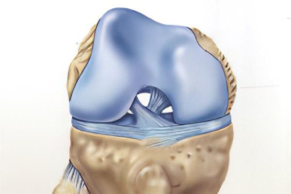 лечение внутреннего мениска коленного сустава народными средствами