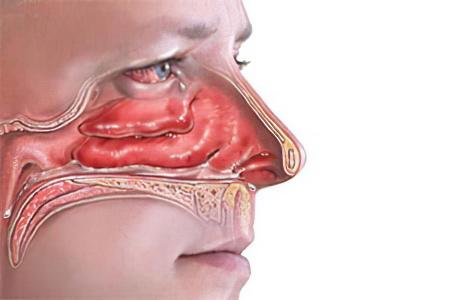 Аденоиды в носу – симптомы, степени, осложнения и лечение