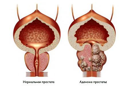 Операция по удалению аденомы простаты отзывы форум