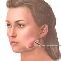 gribok-na-nogah-pervie-simptomi