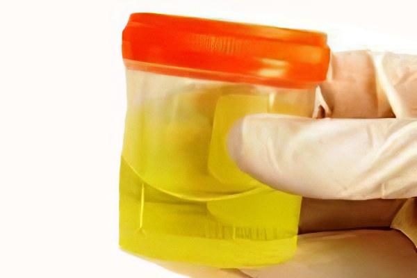 Анализ мочи по нечепоренко как забирать мо дерматовенеролог анализ крови