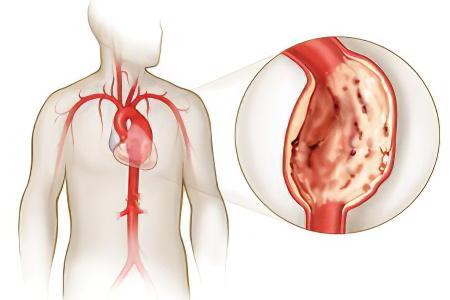 Аневризма аорты сердца - что это такое? Опасности и последствия