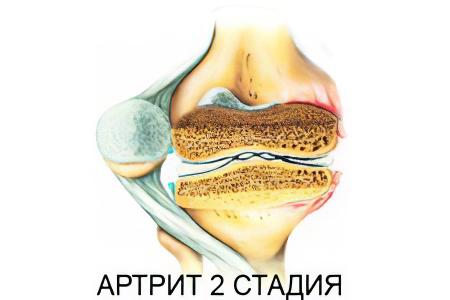 2 степень артрита