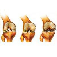 Артрит - эффективное лечение артрита народными средствами и методами