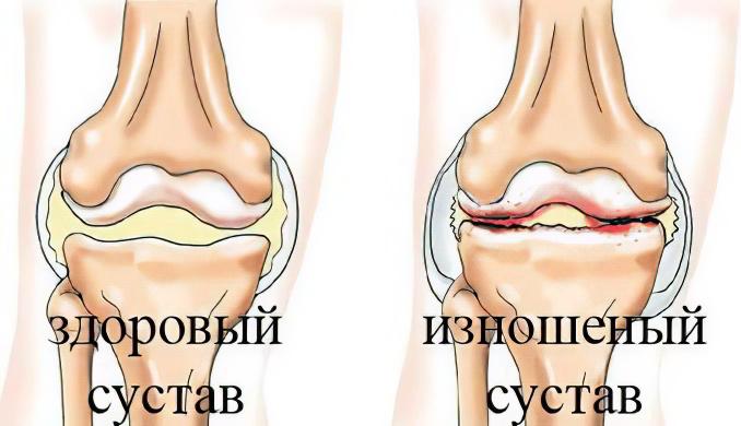 Болезнь суставов артроз сустав комфорт применение