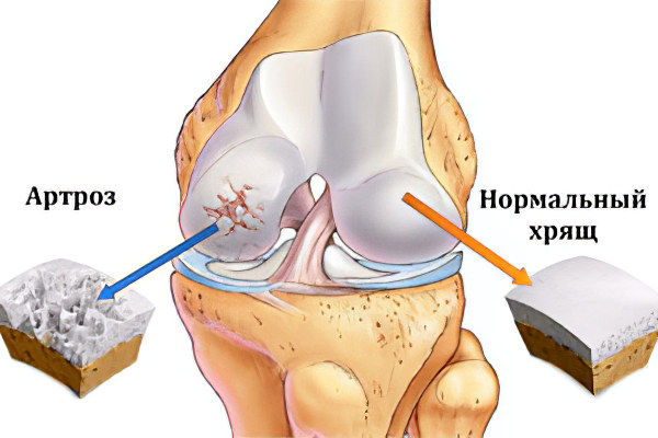 Чтобудет если не личить суставы лечение суставов в россии пятигорск