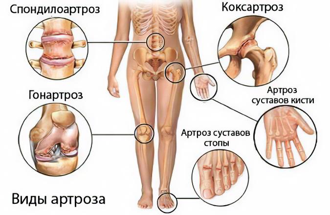 Артроз суставы причины боли в левом плечевом суставе