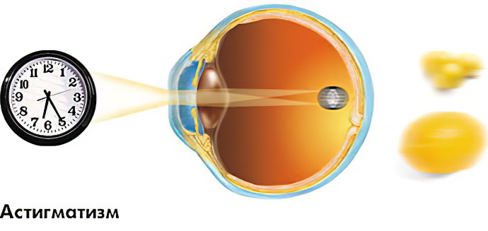 Зарядка для плохого зрения