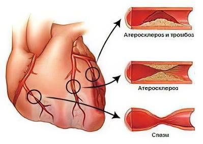 Повышенный холестерин у женщин причина