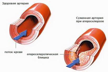 http://www.ayzdorov.ru/images/chto/ateroskleroz2.jpg