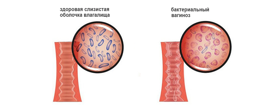 Как надо ложиться чтобы сперма не вытекала из влагалища 10