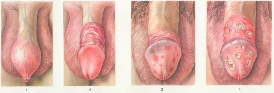 профилактика лечение от паразитов человека