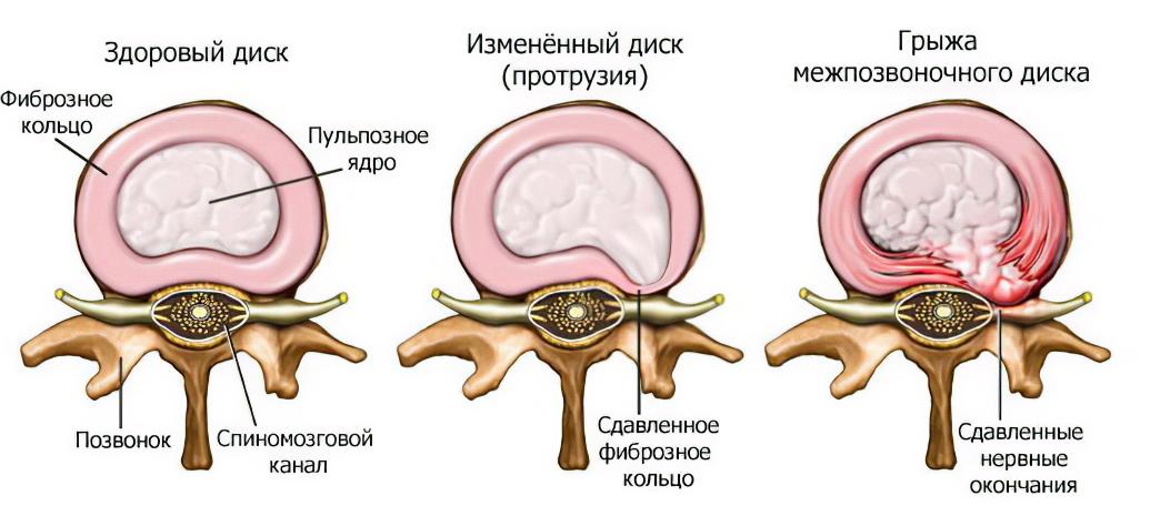 позвоночная грыжа фото симптомы